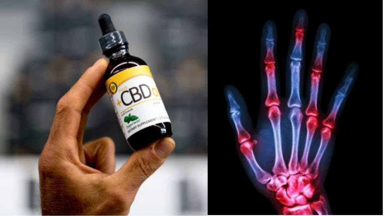 This Happens In Your Body When You Start Using CBD Oil for Pain, Anxiety, Inflammation & more 1