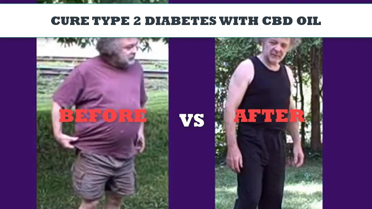 CBD Oil Used to Cure Diabetes in 2 Weeks! (MUST SEE) 1