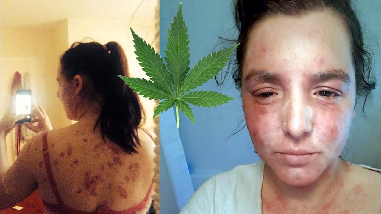 CBD Oil Cured Woman's Severe Eczema 1