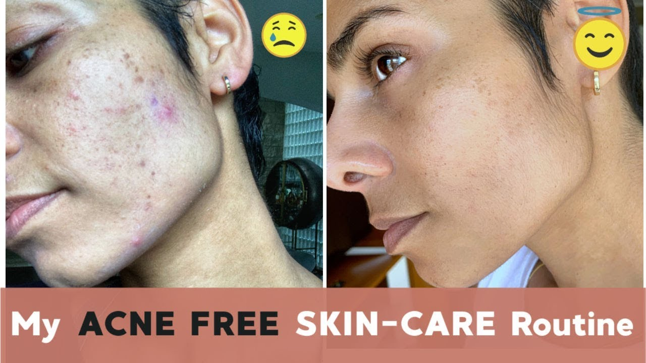 How I Got RID OF ACNE With Lifestyle Changes and CBD 1